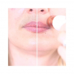 Dispozitiv cosmetica faciala Roxy Shaver Mediashop, Roz